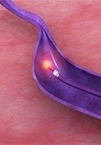endovenuous-laser-ablation-img
